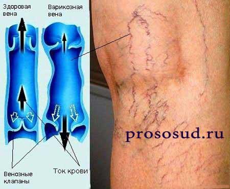 Склерозирование вен на ногах отзывы