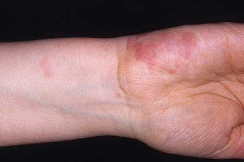 Лечение аллергического васкулита в