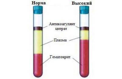 высокий гематокрит