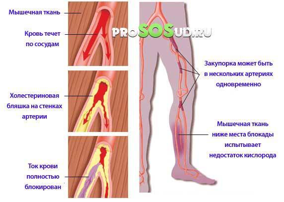 Что такое эхо признаки атеросклероза брахиоцефальных артерий