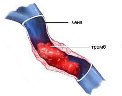 Посттромбофлебитическая болезнь вен нижних конечностей лечение
