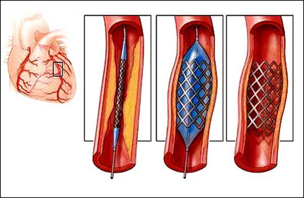 стент в артерии