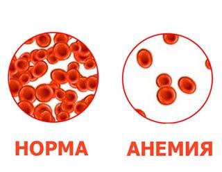анемия крови