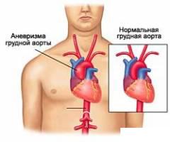 аневризма аорты в груди