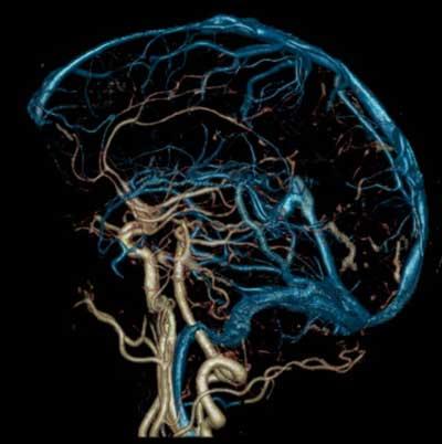 Ангиография головы