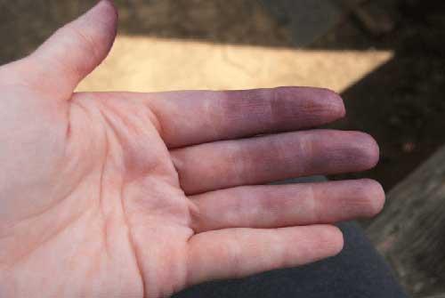 цианоз на руке