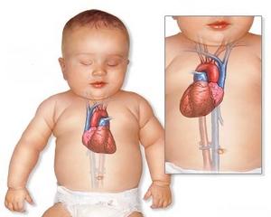 декстрокардия у ребенка