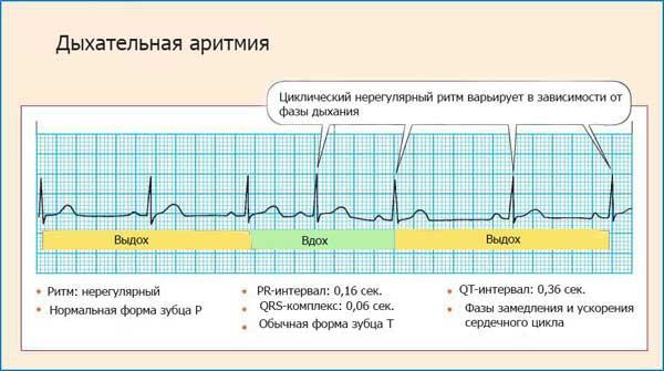 проявление дыхательной аритмии на ЭКГ