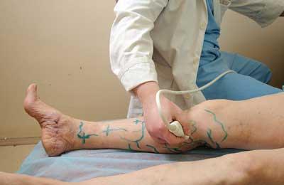 дуплексное сканирование ног