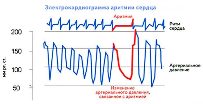 экг аритмии сердца