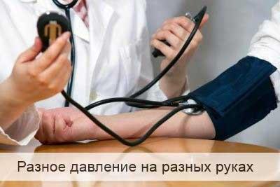 Артериальное давление разные руки thumbnail