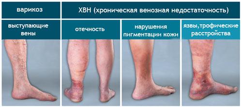 проявления варикоза