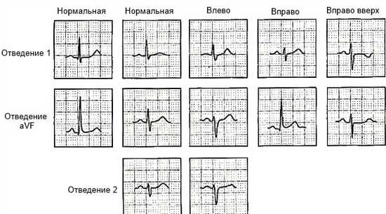 Средняя электрическая ось сердца. Положение электрической оси сердца
