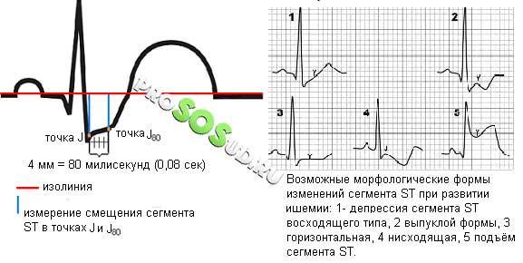 инфаркт миокарда по экг