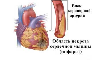 Меню после инфаркта для мужчины