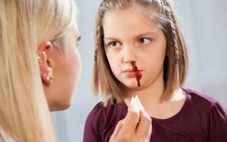 у ребенка из носа идет кровь
