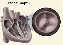 клапан аорты