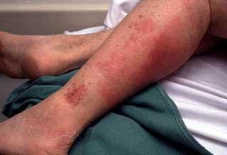красные пятна на ноге