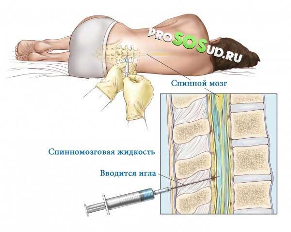 Лечение субарахноидальное кровоизлияние головного мозга