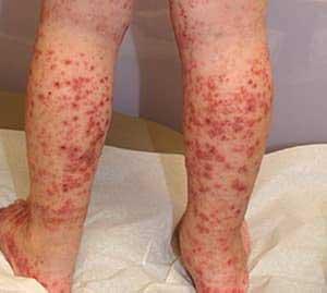 Проявления васкулита на ногах и его лечение