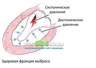 норма выброса крови из сердца