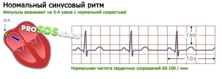 Нормальный ритм сердца