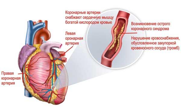 обследование коронарной артерии