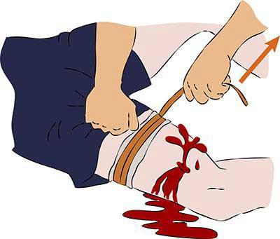 остановка крови на бедре
