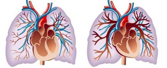 отклонение в развитие сердца