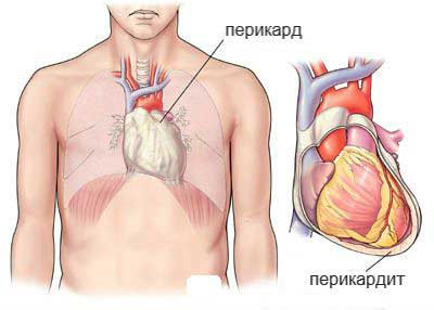 perikardit - What pathologies can provoke a burning sensation in the heart
