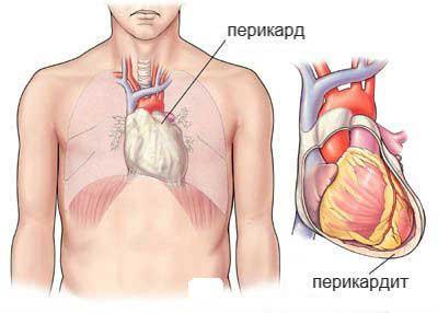 перикардит - Кои патологии можат да предизвикаат чувство на печење во срцето