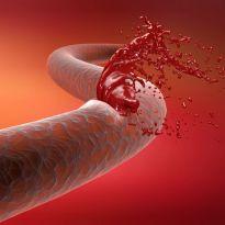 Причины внутреннего кровотечения