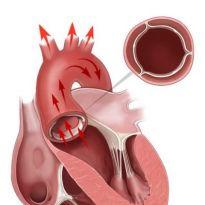 Лечение стеноза аорты без операции
