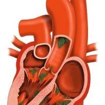 Почему болит сердце при пролапсе митрального клапана thumbnail