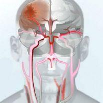 Инсульт затылочной части головы