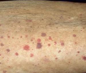 пятна на коже при васкулите
