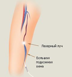 Эндовазальная лазерная коагуляция вен что это такое