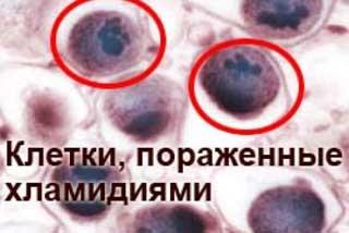 клетки пораженные хламидиями