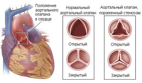 поражение сердца стенозом