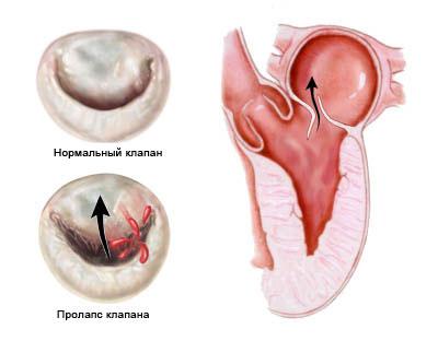 пролапс клапана сердца