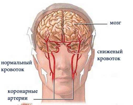 причины спазмов головного мозга