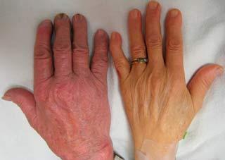 Малокровие связано с болезнью суставов сильные боли в суставах коленей и тазобедренных
