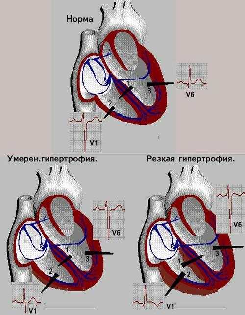 признаки гипертрофии правого желудочк