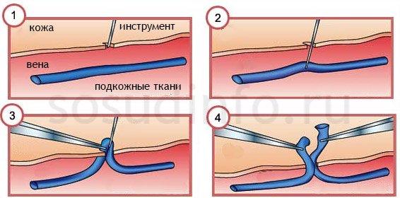 Традиционная флебэктомия крючком
