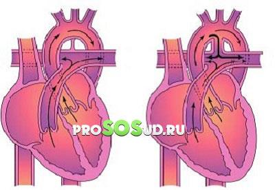 ток крови в сердце