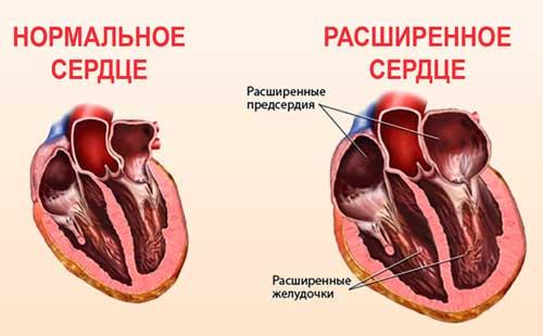 расширенное сердце
