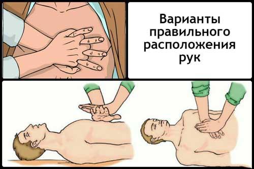 расположение рук при закрытом массаже сердца