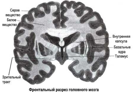 разрез головного мозга
