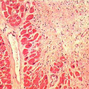 рубцы на тканях сердца