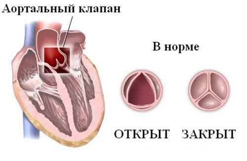сердечный клапан